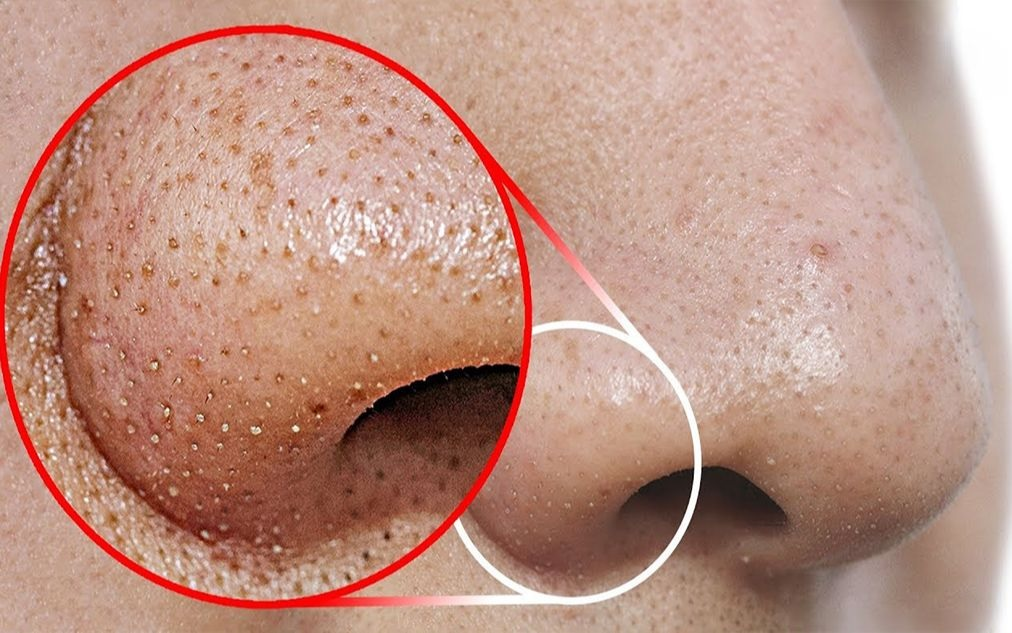 Tips to Get Rid of Blackheads