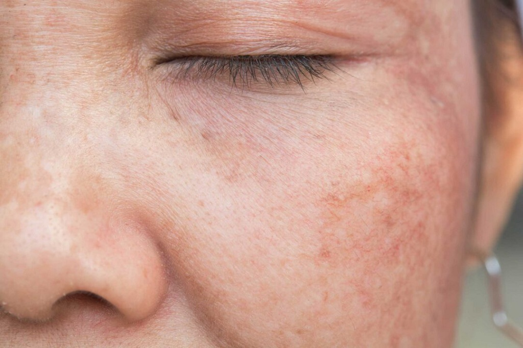 Problems Associated with Hyperpigmentation